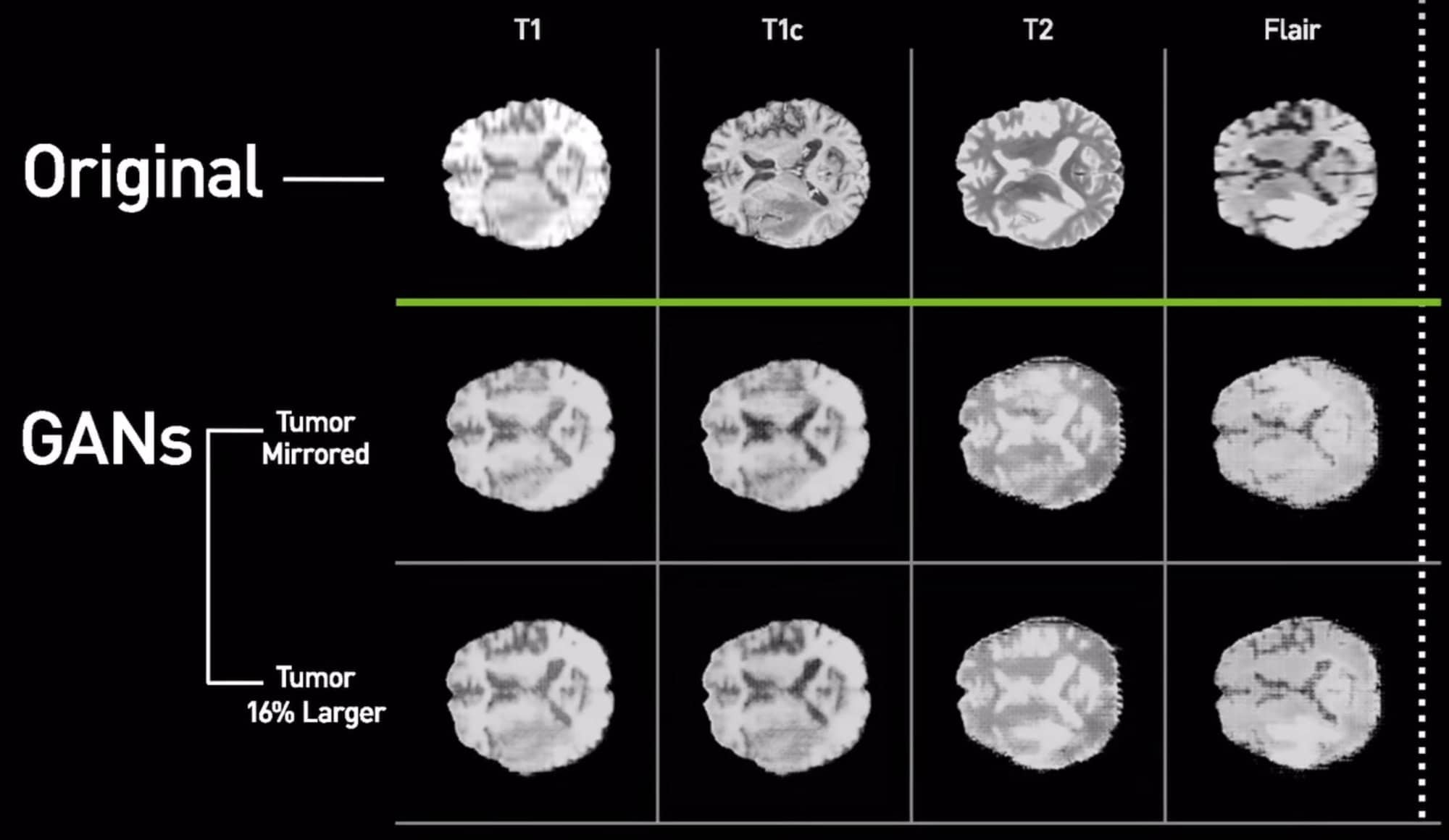 AI generates synthetic scans of brain cancer